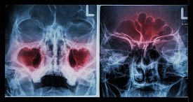 picture of sinuses  - Film X - JPG