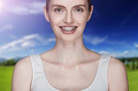 picture of overbite  - Happy beautiful girl with braces on background - JPG