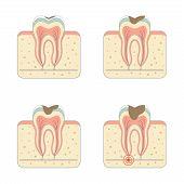 stock photo of human teeth  - tooth decay disease - JPG