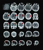 Ischemic Stroke Of Human Brain Ct. With Red Shows The Affected Area. Perhaps The Professional Use Of