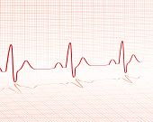 Herzschlag rot grid