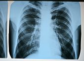 Pneumonia Test Scanning, Modern X-rays Radiography