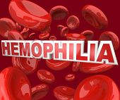 The word Hemophilia in 3D letters floating in an artery blood stream, representing the blood disorde