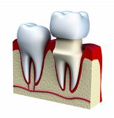 image of dentures  - Dental crown installation process - JPG