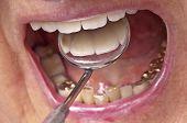 Teeth Examination