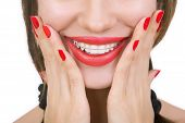 picture of crooked teeth  - Beautiful smiling girl with retainer for teeth and with red lipstick - JPG