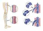 Leg Artery And Aortic Valves