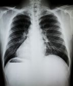 picture of bronchus  - Chest x - JPG