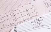 Electrocardiogram Heart Rate Control