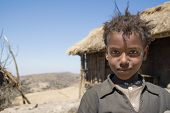 Disheveled Young Girl Posing For A Picture, Bale Mountains, Ethiopia