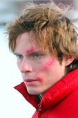 Young Man  With Grazes On A Face