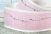 Cardiograma el concepto para accidentes cerebrovasculares y ataques cardíacos