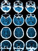 image of magnetic resonance imaging  - diagnosis of  brain disorders - JPG
