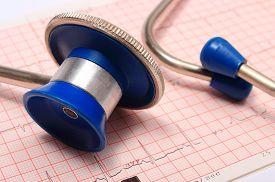 stock photo of ekg  - Medical stethoscope and electrocardiogram graph ekg heart rhythm medicine concept - JPG