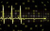 Heart monitor screen in editable vector format