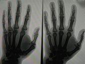 Hand X-Rays