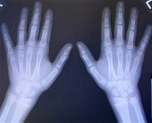 Bilateral Hand X-Rays