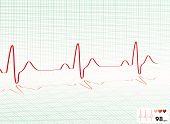 Coração bater grade verde