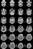 Series of images from a computerized tomography of the brain