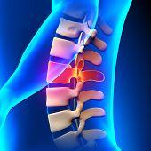 L2 Disc - Lumbar Spine