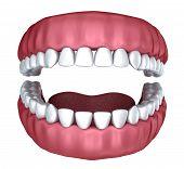 stock photo of denture  - 3d open denture isolated on white background - JPG
