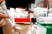 pic of electrophoresis  - Sample preparation for DNA electrophoresis - JPG