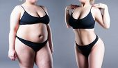 Womans Body Before And After Weight Loss poster