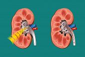 picture of morbid  - Schematic drawing of lithotripsy in kidney stones - JPG
