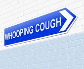 Whooping Cough Concept.