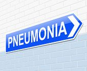 picture of pneumonia  - Illustration depicting a sign with a pneumonia concept - JPG