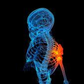 3d rendere human of shoulder pain