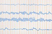Electro cardiogram ecg - medical background
