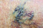 foto of varicose  - Varicose vein - JPG