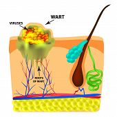 The Structure Of The Wart. The Structure Of The Skin. Infographics. Vector Illustration On Isolated  poster