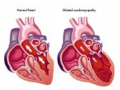 Dilated Cardiomyopathy.eps