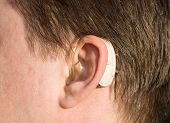 Close-up Of A Man Ear With A Behind-the-ear-hearing Device