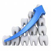 3D Teeth Bar Diagram With Blue Arrow