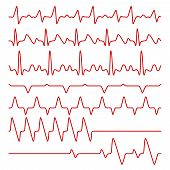 electrocardiogram poster