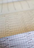 Close Up View Of An Electrocardiogram Paper. poster