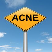 stock photo of puberty  - Illustration depicting a roadsign with an acne concept - JPG