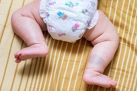 foto of birthmark  - Birthmark on Asian baby thai girl legs - JPG