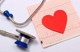 stock photo of ekg  - Medical stethoscope electrocardiogram graph and heart shape ekg heart rhythm medicine concept - JPG