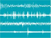 Brain Waves Activity