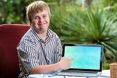 Friendly Boy With Down Syndrome Pointing At Blank Laptop Screen.