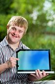 Handicapped Boy Pointing At Blank Laptop Screen.
