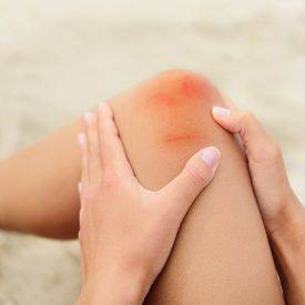image of bruises  - Woman nursing an injured bruised grazed knee with surface petechia on the skin and tissue discoloration in her hands in a healthcare and medical concept - JPG