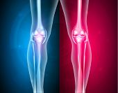 picture of joint  - Normal leg knee joint at the blue background and unhealthy joint at the red background - JPG