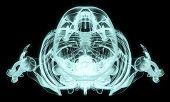 X-ray Over Head Full Body