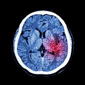 stock photo of hemorrhage  - CT scan of brain show Ischemic Stroke or Hemorrhagic Stroke - JPG