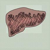 Diseased Liver